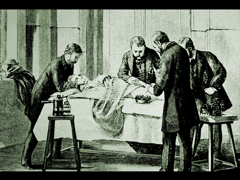 Surgery Using Lister's Carbolic Acid Sprayer